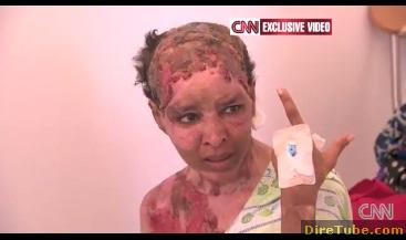 Wife of Gaddafi's Son Burned the Face of an Ethiopian Woman