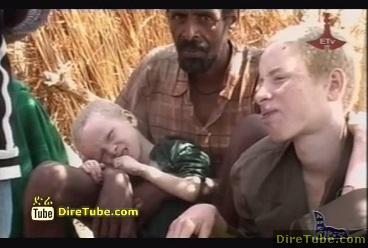 YALTEGERU ESABEWOCH - Ethiopian Family with Albinism