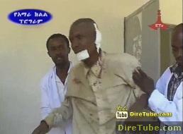 Amhara Police News